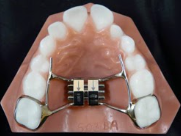 A Rapid Palatal Expander (RPE) appliance widens the roof of your mouth by gently separating the suture in the center of your palate (upper jaw).