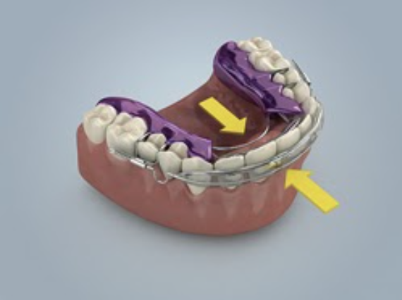 The Spring Aligner is effective for making slight alignment adjustments, especially to moderately crowded front teeth.